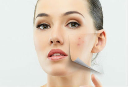 acne mujer