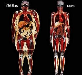 grasa abdominal