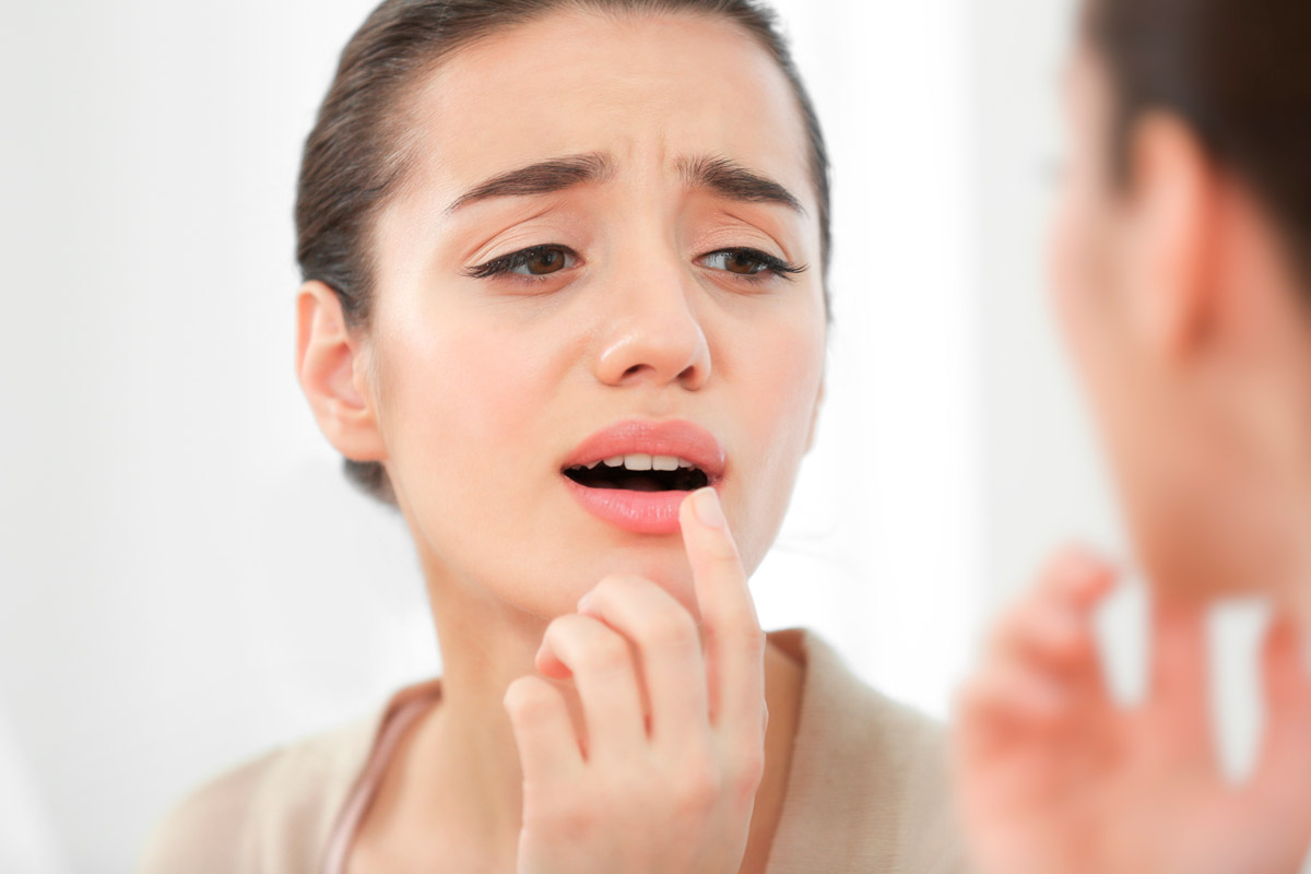 Tratamiento herpes labial lisina
