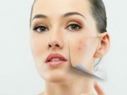 El acné: no basta con las cremas